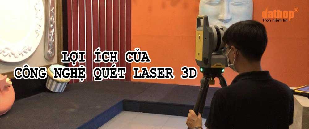 Loi ich cua cong nghe quet laser 3D